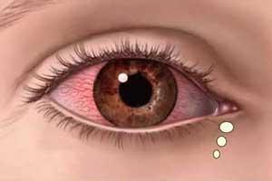 پیشنهاد قرآن برای درمان چشم چرانی